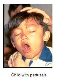 Child with pertussis