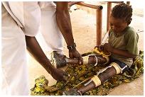 Child with polio